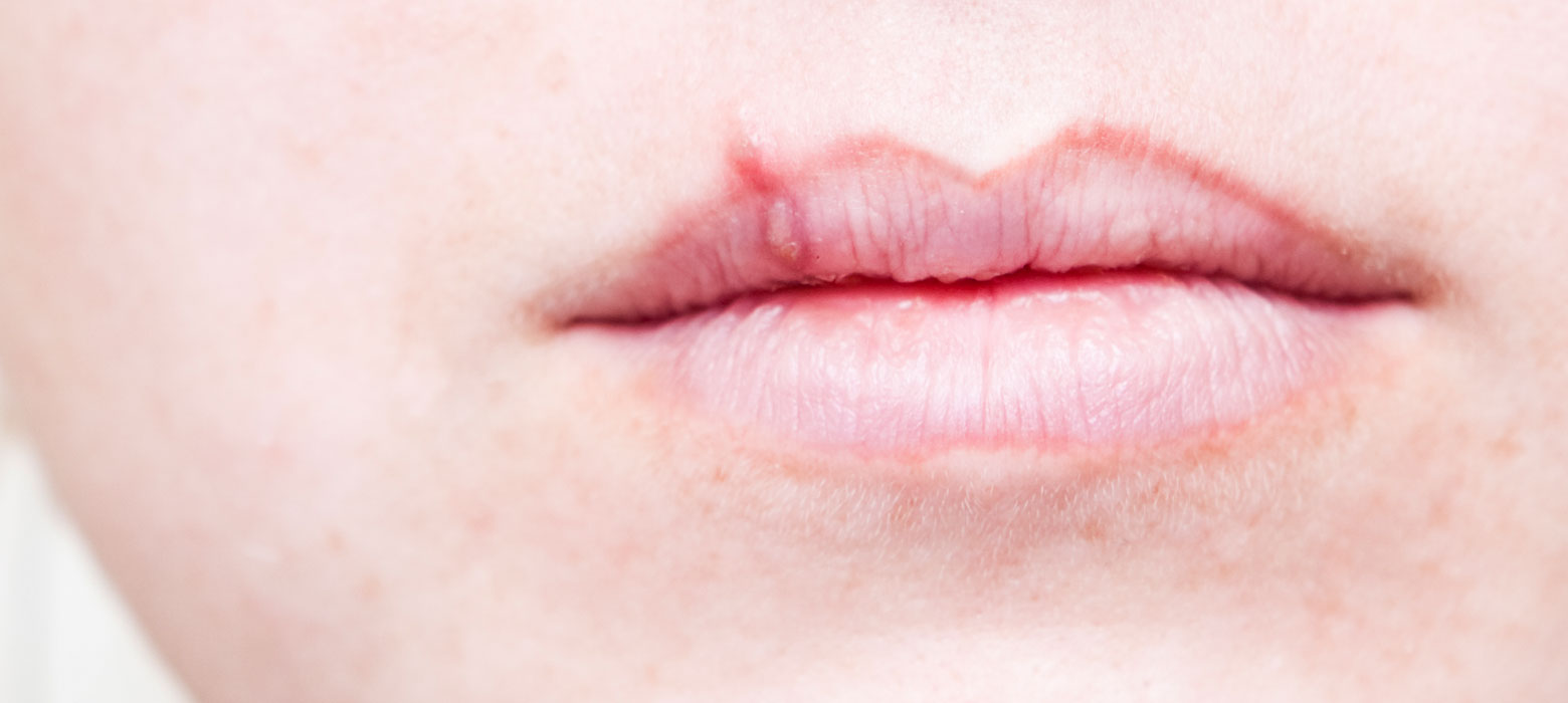 Cold sore scab stage heal faster